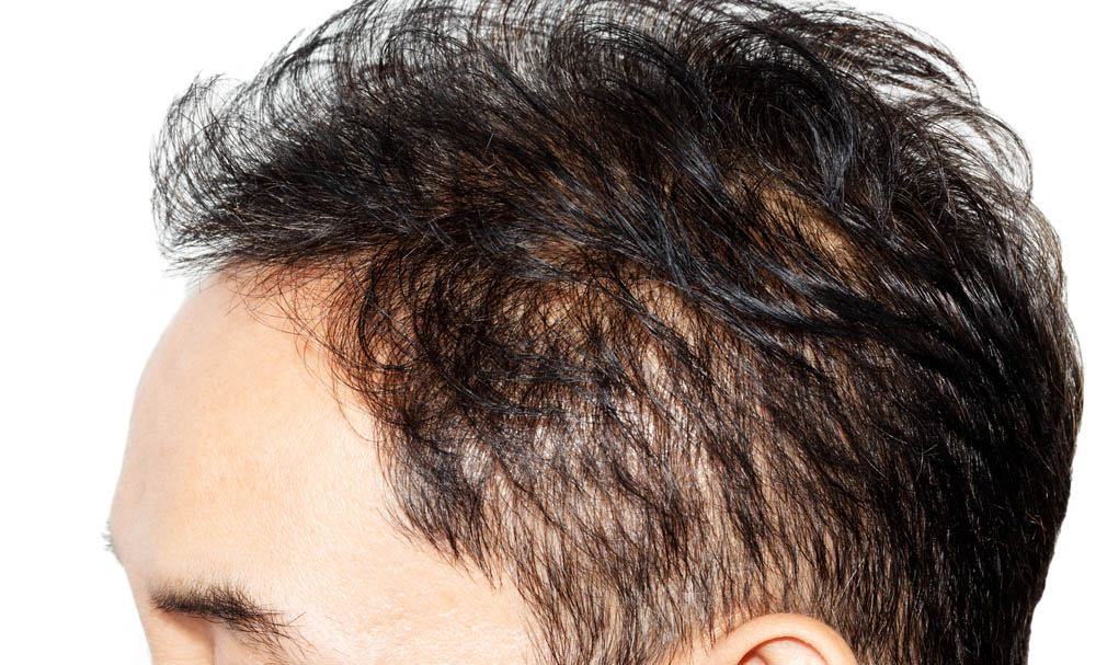stock-photo-hair-loss-on-white-background-292985642